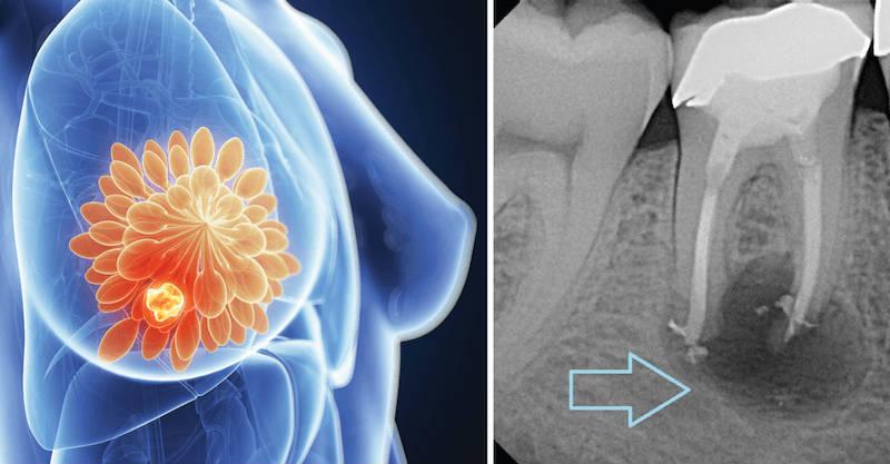Legatura pe care nimeni nu v-a spus-o, dintre canalele radacinilor dintilor si cancerul de san