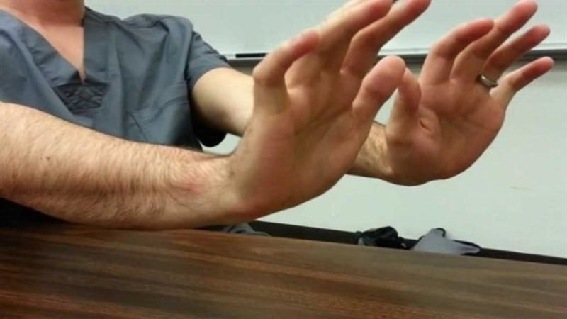 De ce este important sa iti analizezi cat mai Des mainile. Legatura dintre cancer si aceasta Parte a Corpului