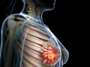simptomele frecvente cancer sân