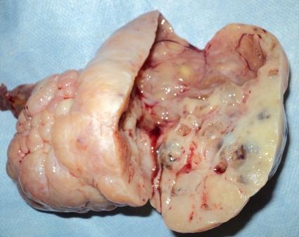 Semnele vindecarii Cancerului. Interviu cu dr. Cristian Boerescu