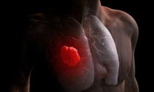 Șapte semne timpurii in cancerul pulmonar pe care nu trebuie să le ignori