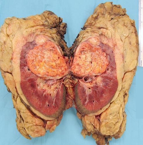 Cancerul rinichilor, tratat cu plante din farmacia Domnului