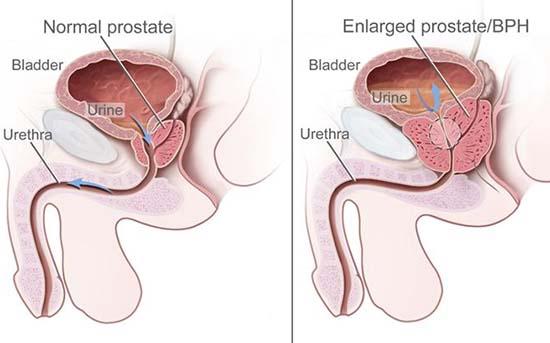 Metodă revoluționară de tratare a cancerului de prostată