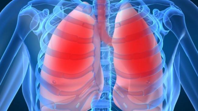 tratamentul cancerului la plămâni