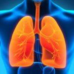 Ce alimente nu trebuie să lipsească din dieta unui bolnav de cancer pulmonar