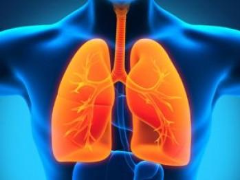bolnav de cancer pulmonar