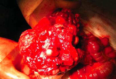 Despre cancerul peritoneal