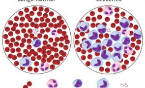 Vești bune pentru bolnavii de cancer: O nouă speranță pentru vindecarea leucemiei vine din Italia
