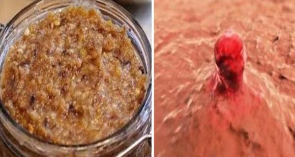 O femeie in varsta de 56 de ani a descoperit un tratament pentru cancerul ovarian!