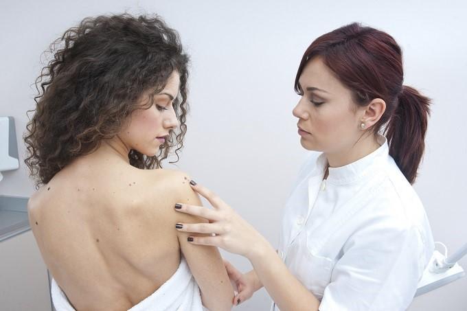 cancerul poate afecta, orice zonă de piele, medic dermatolog care inspectează pielea unei femei pentru alunite și melanom