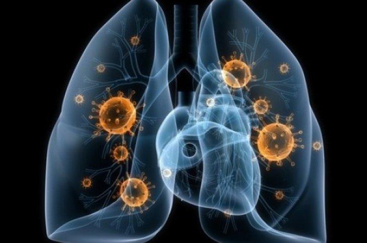 Daca ai aceste simptome atunci ai putea avea cancer pulmonar