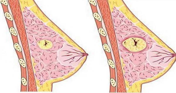 Ce să faci ca să previi chisturile mamare