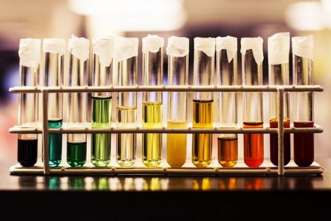culoare urina, cancerul şi pietrele la rinichi, boală gravă