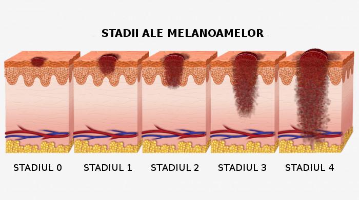 melanom-2 cancer de piele, degetele de la picioare