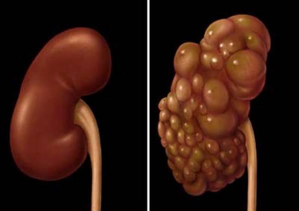 Tămâia topește chisturi de pe ficat, plămâni, rinichi, ovare