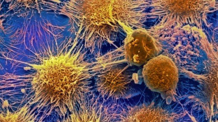 Leacul care distruge celulele canceroase: tămâia